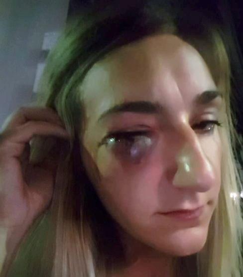 Il volto tumefatto della giovane che lei stessa ha mostrato su Facebook